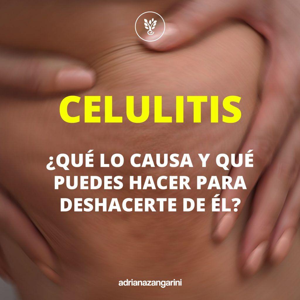 Cómo Deshacerse De La  Celulitis De Forma Natural